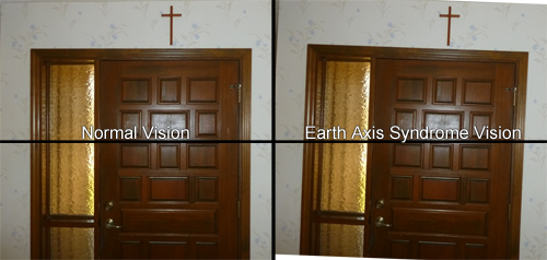 Earth Axis Syndrome – Tilted Vision